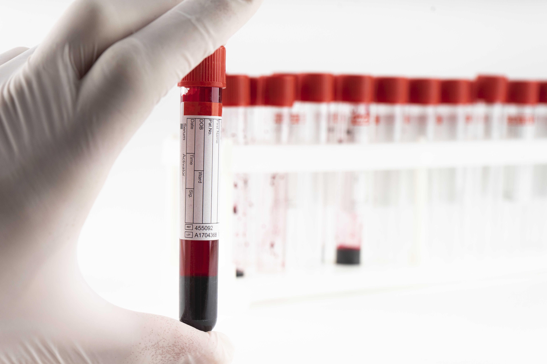 test sierologici provetta