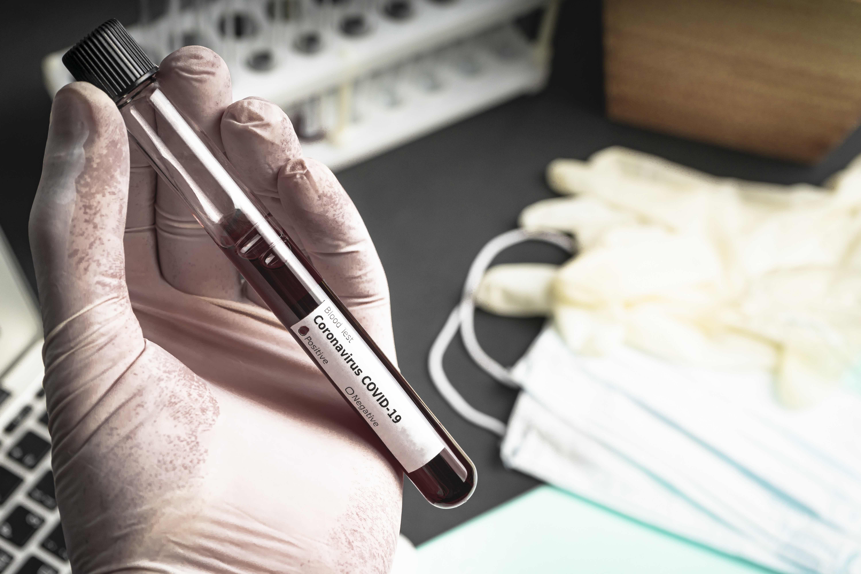 test-sierologico-uomo-provetta